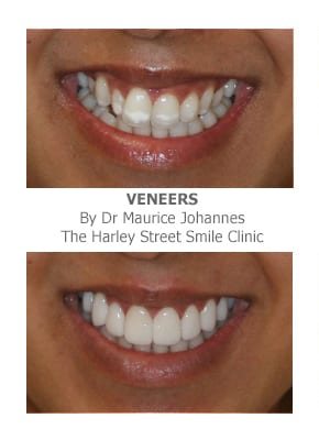 Treating Dental Fluorosis with Veneers