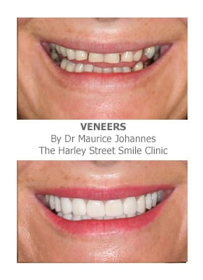Full Mouth Dental Crowns and Veneers