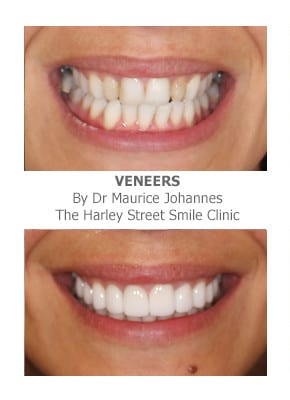 Full smile makeover before and after photos -Cosmetic Dentistry