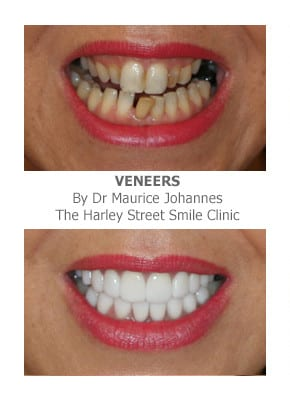 Full smile makeover before and after photos - Cosmetic Dentistry