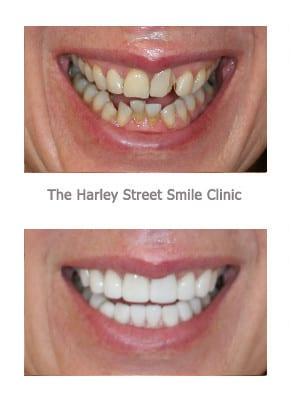 Smile Makeover Before & After -Cosmetic Dentistry