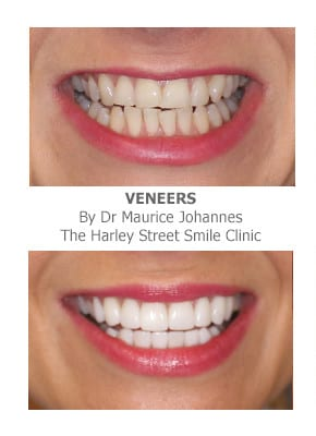 Full Smile Makeover - Cosmetic Dentistry London