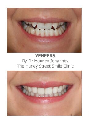 veneers for missing front teeth before and after