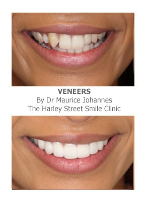 Veneer for Missing Teeth in London