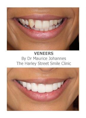 Veneer for Missing Teeth in London