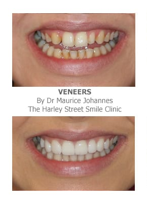 veneers for missing front teeth London
