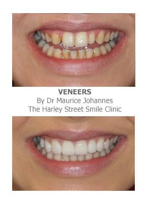veneers for missing front teeth London