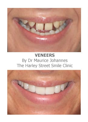 Can veneers replace missing teeth