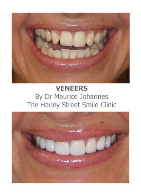 veneers for missing front teeth
