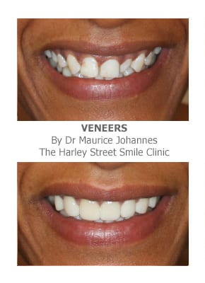 porcelain veneers for missing teeth