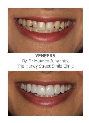 veneers for missing front teeth