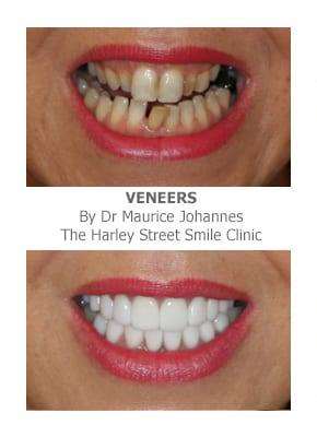 Widening the Narrow Smile with Porcelain Veneers