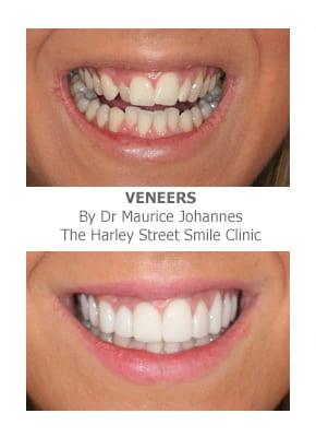 Narrow Smiles Correction using veneers