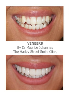 Veneers for narrow smiles london