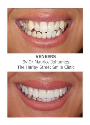 Veneers for narrow smiles london