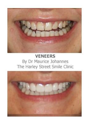 Widening the Narrow Smile with Porcelain Veneers