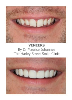 Narrow Smiles Correction using veneers