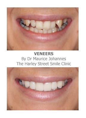 Overlapping front teeth fixed with veneers
