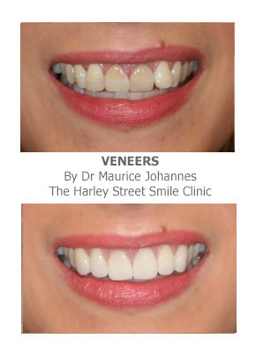 Can overlapping teeth be fixed with veneers?