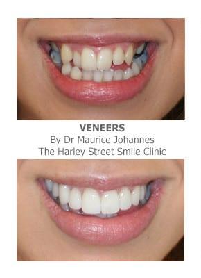 Veneers for Overlapping Teeth