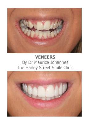 Can Porcelain Veneers Fix Crooked Teeth
