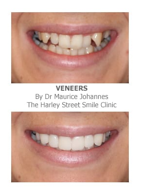 Veneers for Protruding Teeth