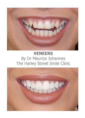 Fixing Buck Teeth (Protruding Teeth) with Veneers