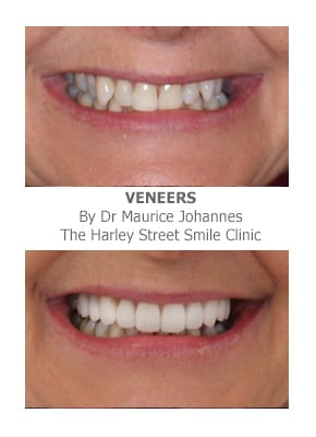 Can veneers correct protruding front teeth