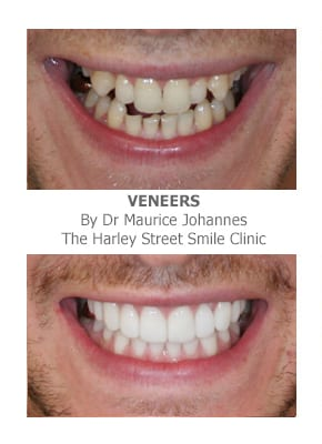 Correcting teeth length with veneers