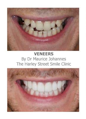 Correcting teeth length with veneers