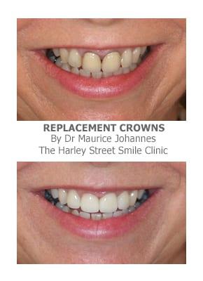 Replacing Old Crowns and Veneers Dental crowns