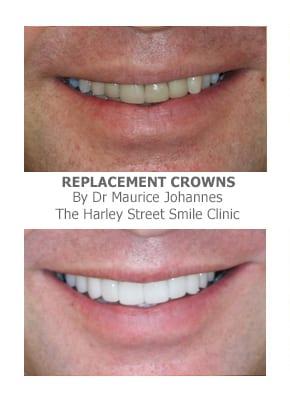 Dental Bridge and Dental Crowns London
