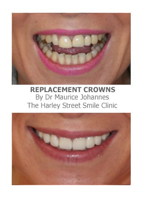 crowns bridges and veneers