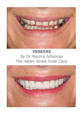 Veneers for Worn Chipped Teeth London