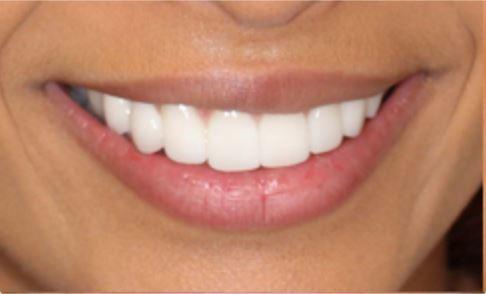 veneers for missing teeth