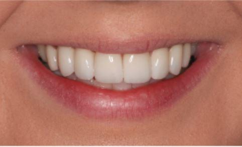 Porcelain Veneers and Crowns for Fluorosis