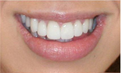 Veneers for Overlapping Teeth After