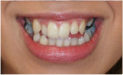 Veneers for Overlapping Teeth Before