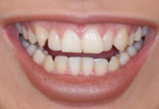 Porcelain Veneers London