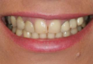 Porcelain Veneers London Experts