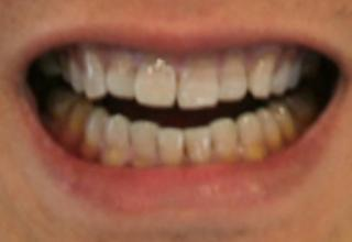 Veneers in London