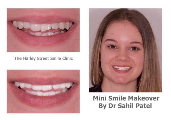 Dr. Sahil Patel  - Cosmetic Dentistry London