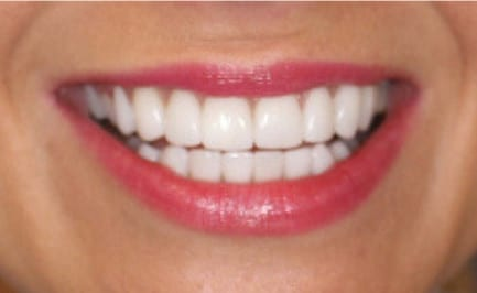 Full Smile Makeover after