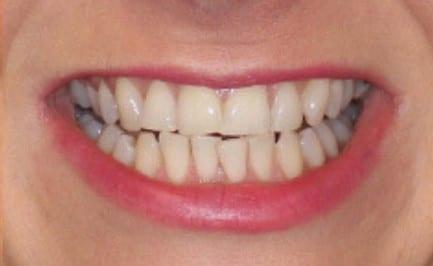 Full Smile Makeover | Harley Street Smile Clinic