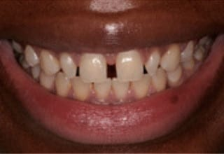Veneers for Gaps in Teeth