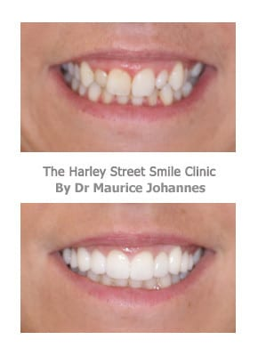 Reduce gummy smiles with veneers