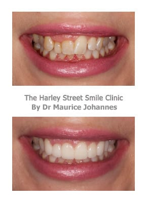 Gummy Smile before and after photos