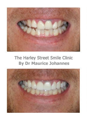 Veneers Help Reduce Those Gummy Smiles