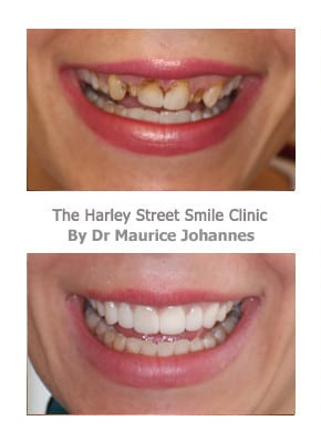Veneers for Gummy Smiles