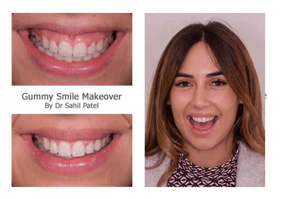 Veneers for Gummy Smile Makeover